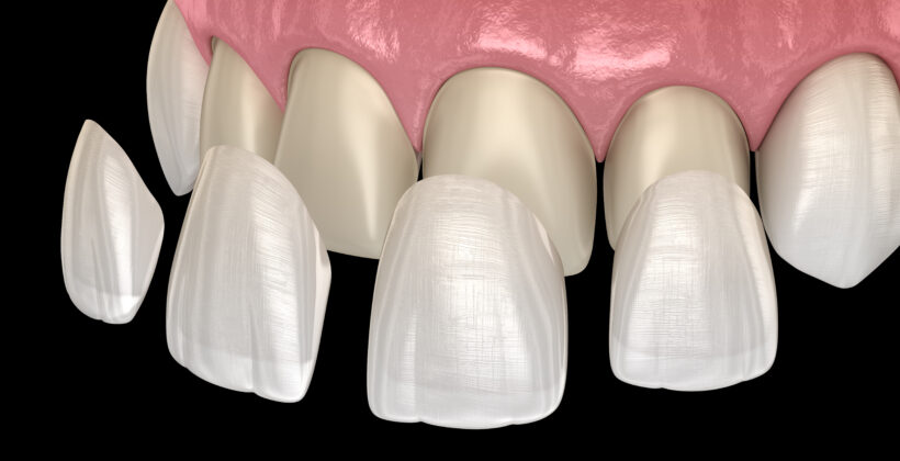 How Porcelain Veneers compare to other types of veneers